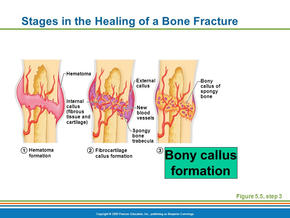 bone fractures-- breaks in a bone - ppt download, Muscles