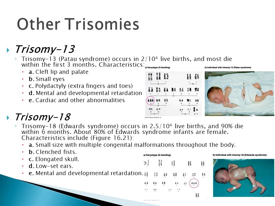 the clinical description of the chromosomal disorder trisomy 18 syndrome Edward's syndrome clinical description  the most common condition in edward's syndrome is trisomy 18  an ultrasound test will show the disorder at 18-20 week.