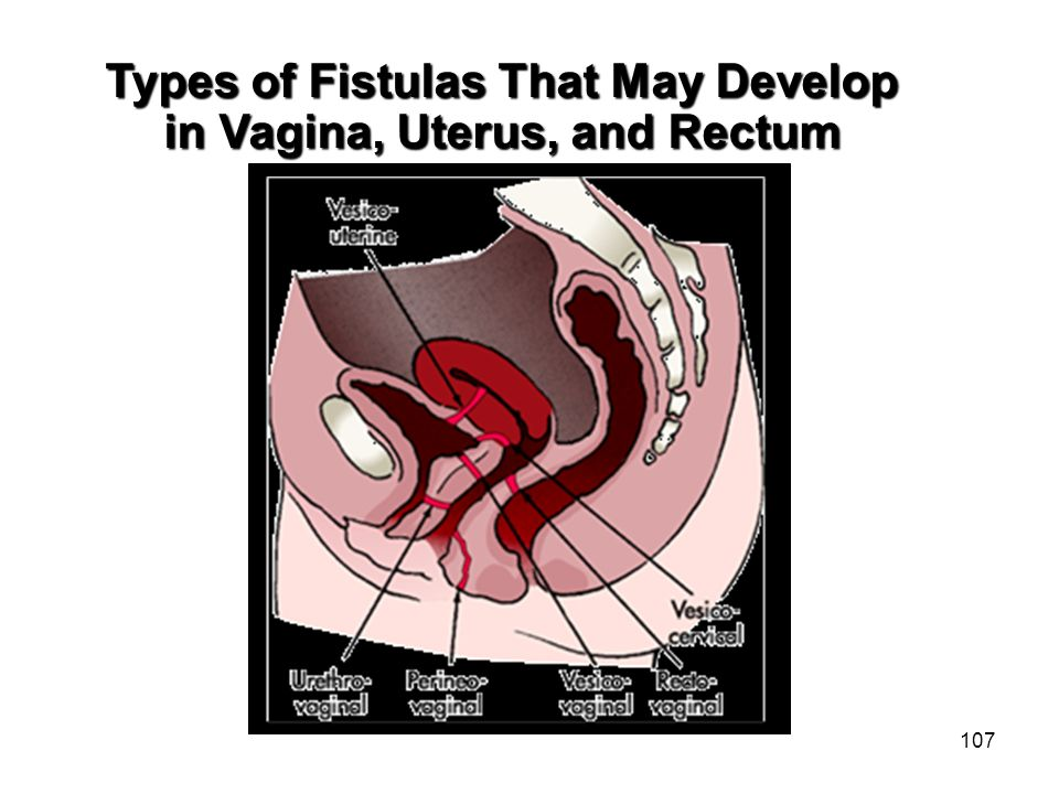Types of Fistulas That May Develop in Vagina, Uterus, and Rectum