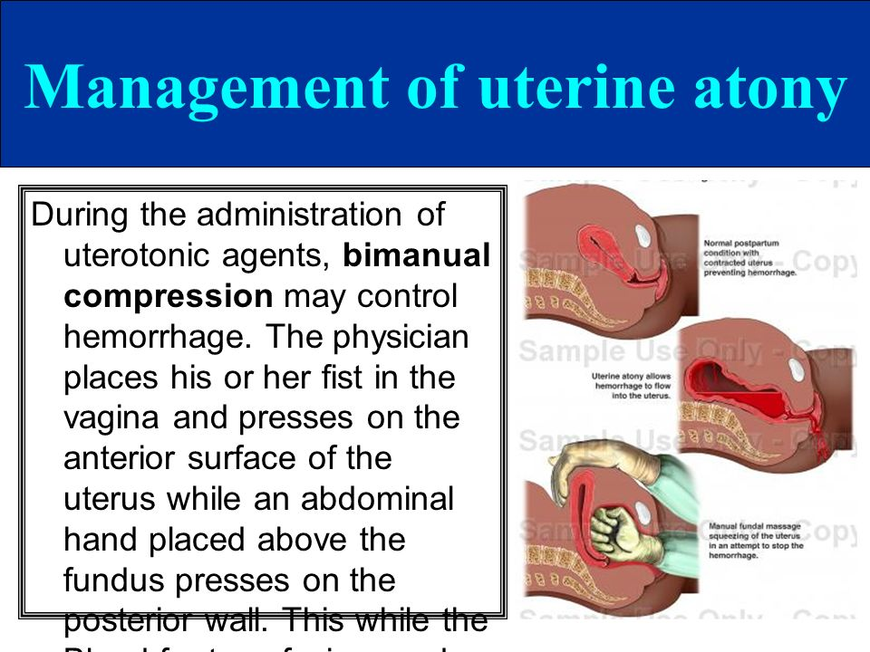 Management of uterine atony