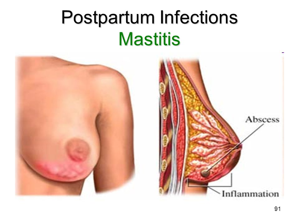 Postpartum Infections Mastitis