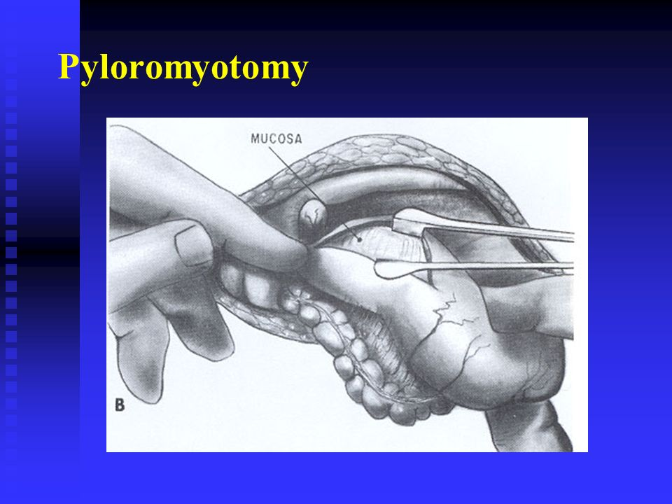 Pediatric Surgery. - ppt video online download