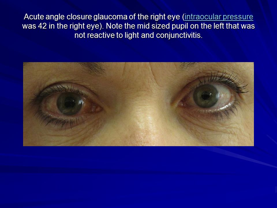 steroid induced glaucoma after prk