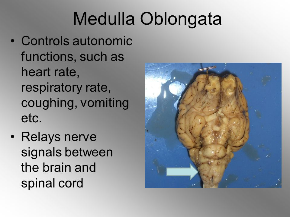 pons medulla relationship in human and sheep eyes
