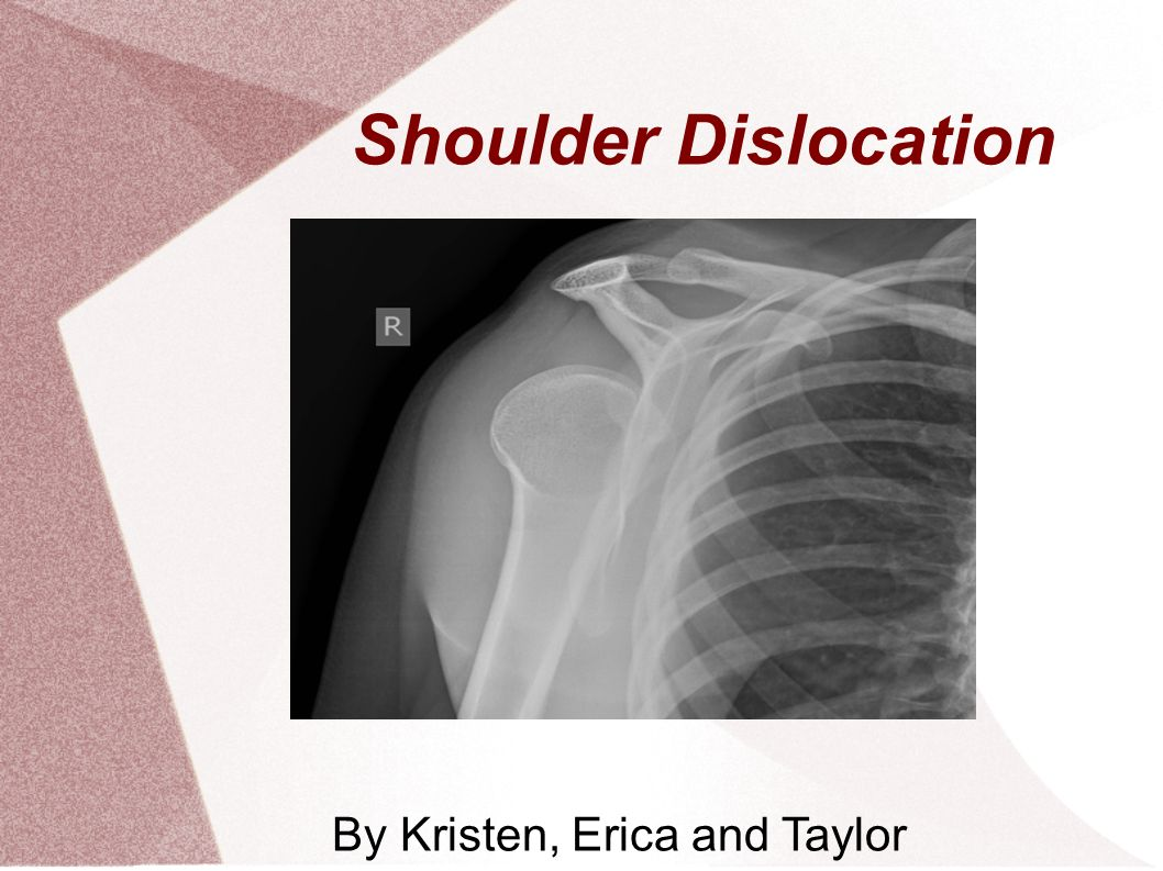 By Kristen, Erica and Taylor - ppt video online download