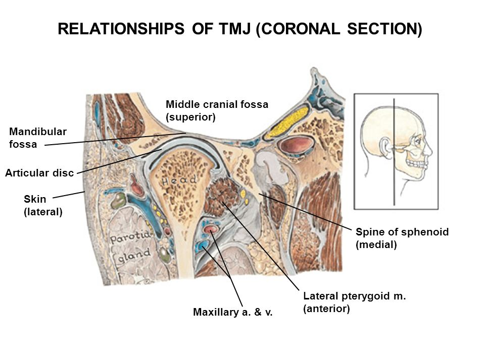 infratemporal fossae; tmj - ppt download, Human Body