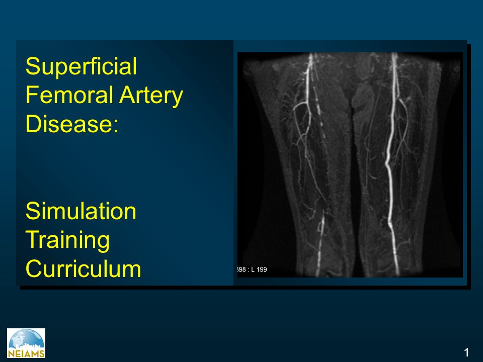 Superficial Femoral Artery Disease: - ppt video online download