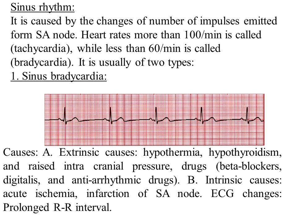 Causes of cardiac arrh...
