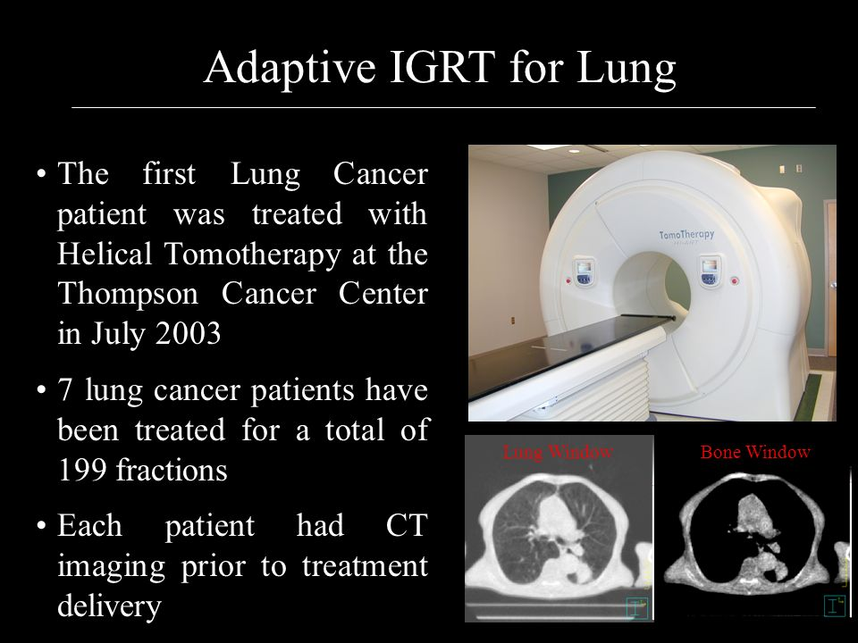 Adaptive IGRT for Lung The first Lung Cancer patient was treated with Helical Tomotherapy at the Thompson Cancer Center in July