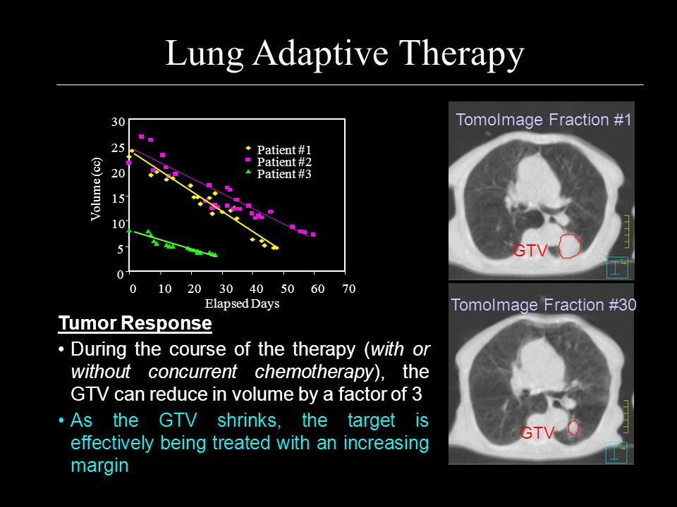 Lung Adaptive Therapy Tumor Response