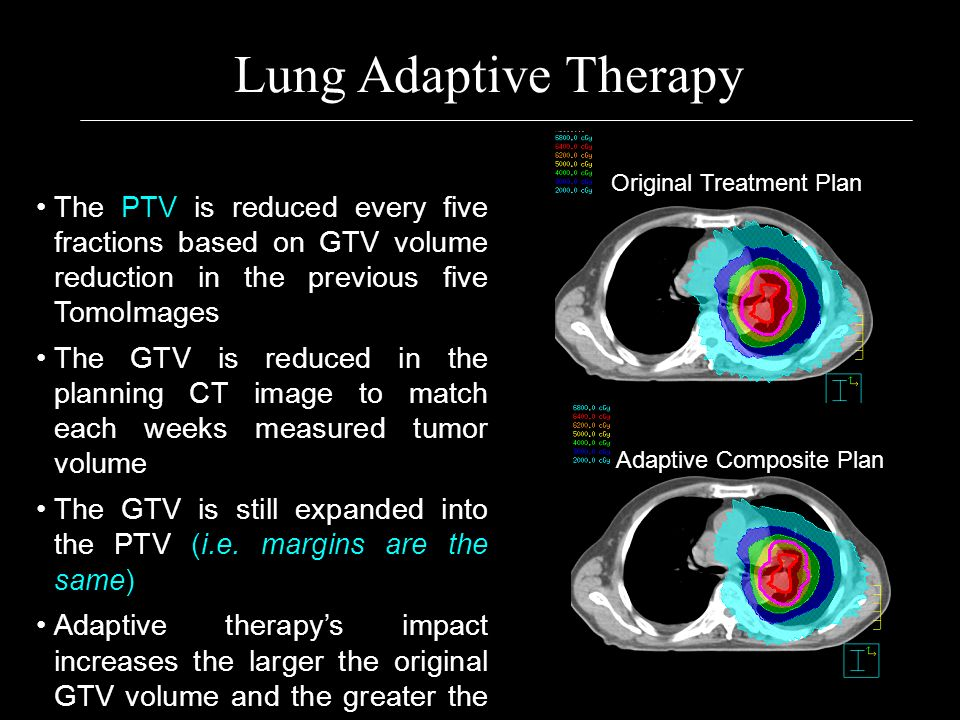 Lung Adaptive Therapy Original Treatment Plan. The PTV is reduced every five fractions based on GTV volume reduction in the previous five TomoImages.