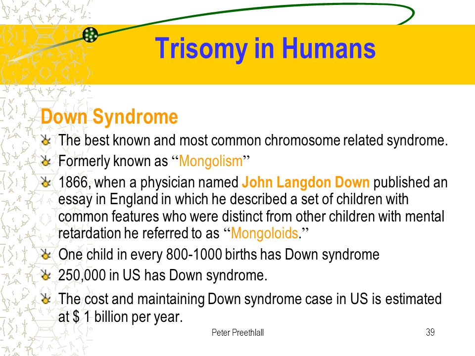 downs syndrome mongolism essay This review of the literature on down syndrome focuses on various systemic anomalies and oral anomalies, its clinical manifestations, and recommendations for persons with down syndrome.