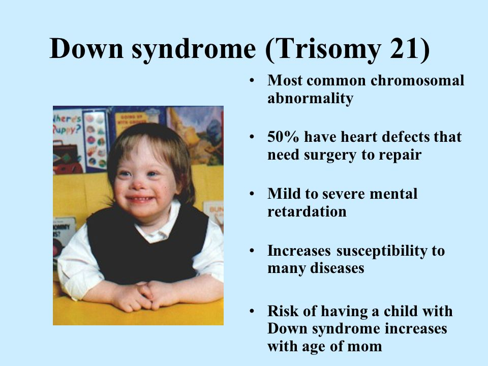the characteristics of down syndrome a chromosomal abnormality Abnormalities in chromosomal number  of human adults (chromosomal abnormality, common name of the  (down syndrome, covered.