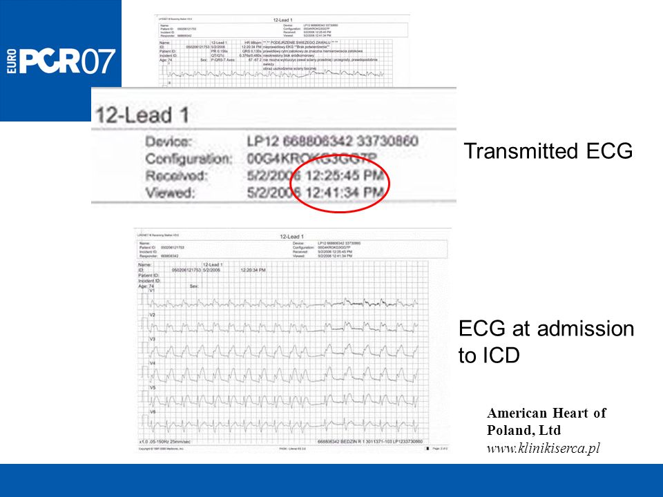Transmitted ECG ECG at admission to ICD American Heart of Poland, Ltd