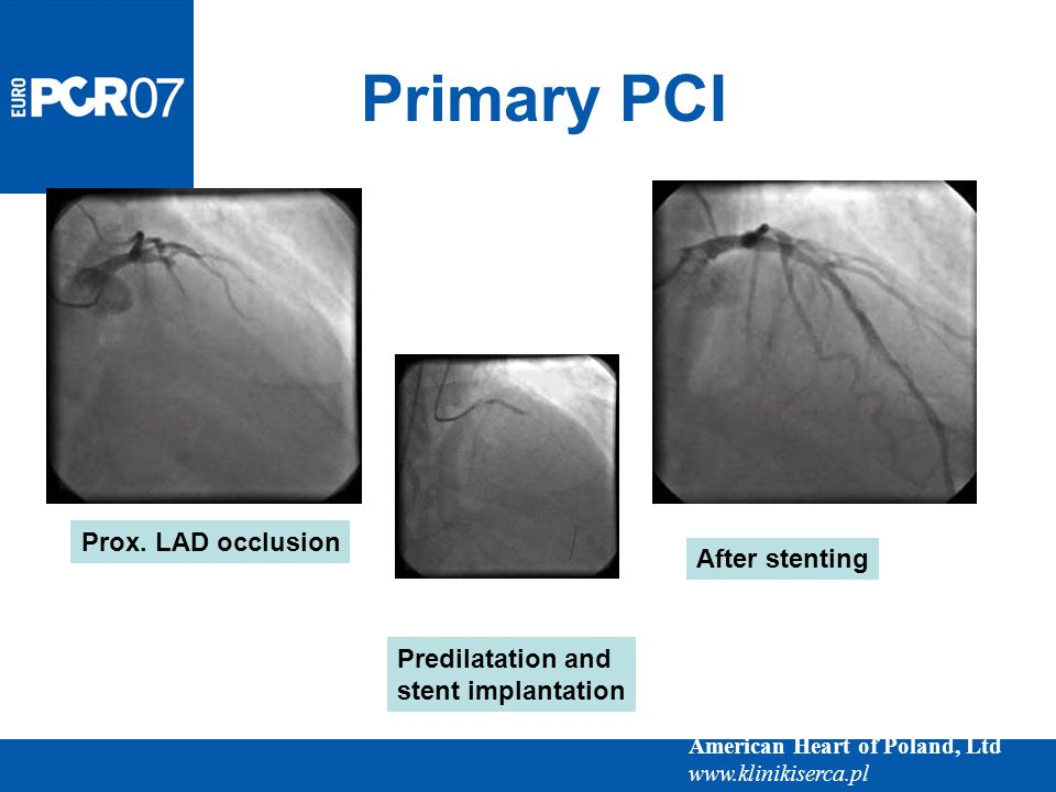 Primary PCI Prox. LAD occlusion After stenting Predilatation and