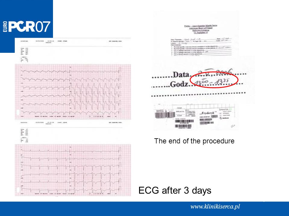 ECG after 3 days The end of the procedure