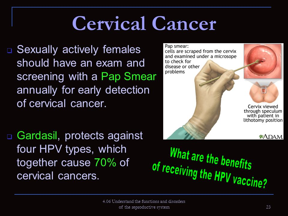 ovarian cancer in the reproductive system