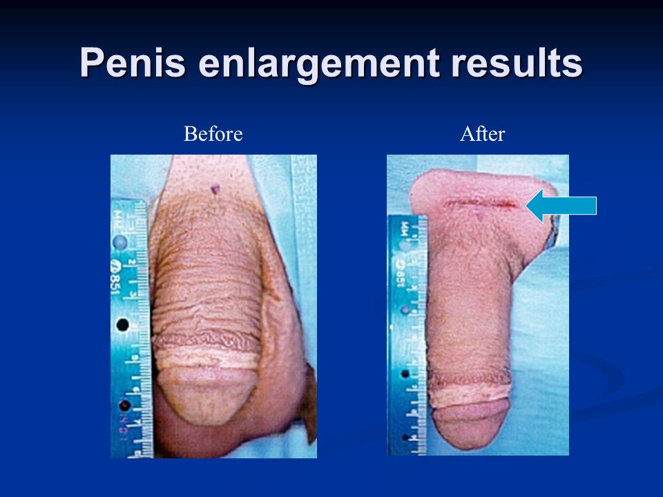 Penis Enlargment Results 13