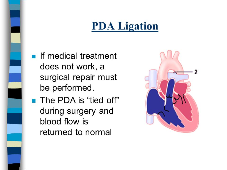 Patent Ductus Arteriosis Pda Ppt Video Online Download