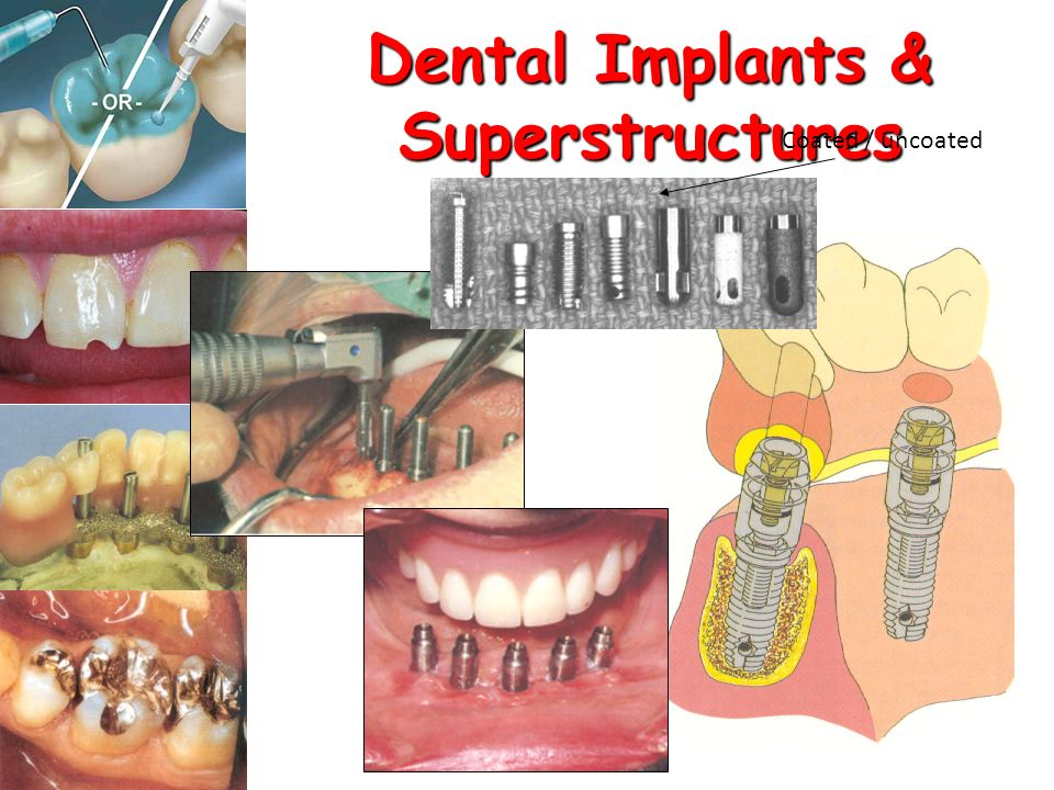 Dental Implants & Superstructures