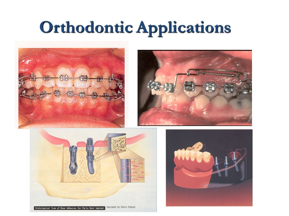 Orthodontic Applications