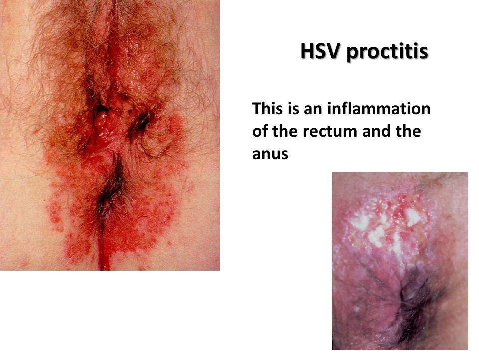 Herpes virus images on anus