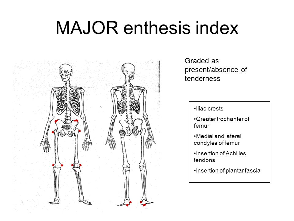 enthesis tenderness Physical examination included an assessment of tenderness at 17 tendon-insertion sites according to the modified newcastle enthesis index (with a score of 0.