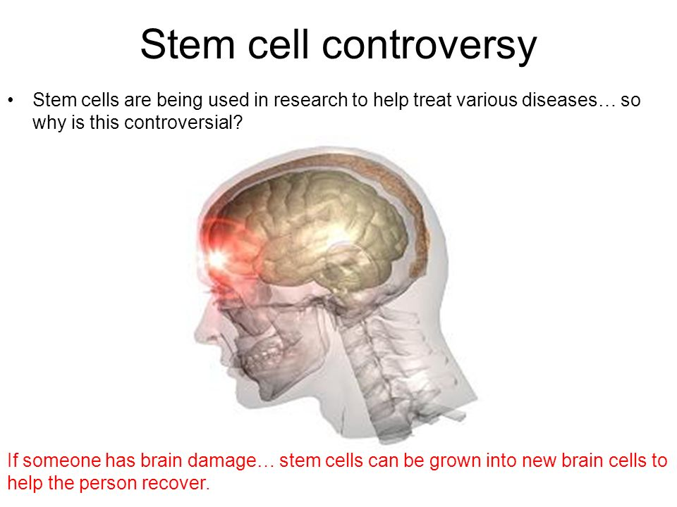 Stem cell controversy
