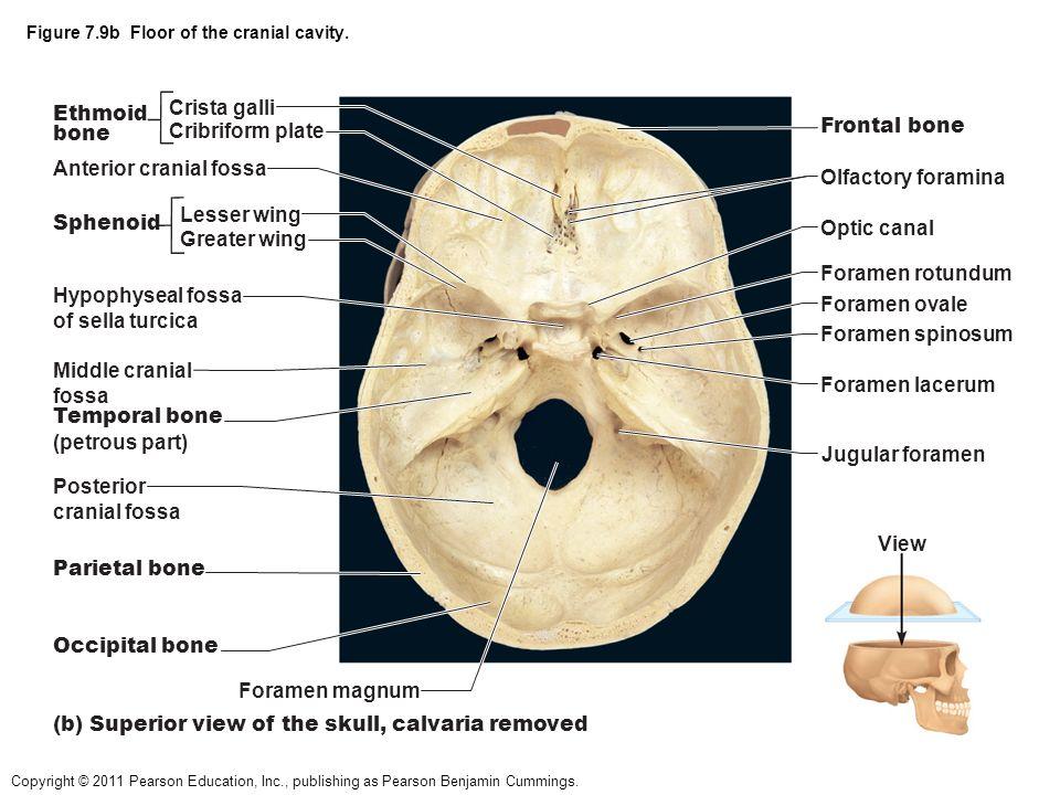 Ethmoid Bone Superior View