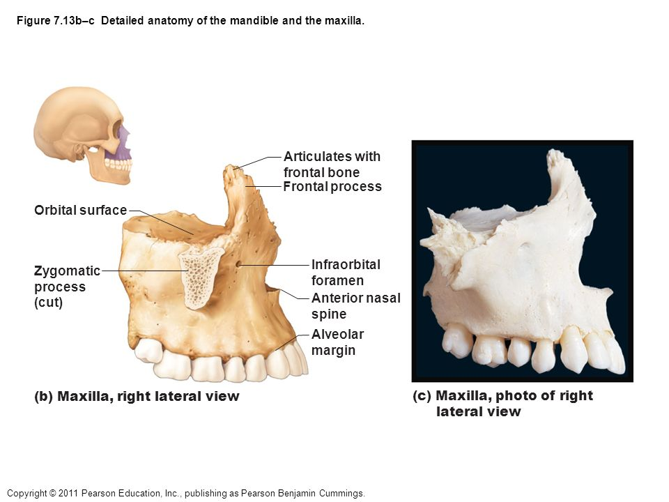 Mandible And Maxilla Anatomy