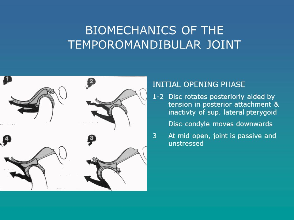 biomechanics of the temporomandibular joint Biomechanics of temporomandibular jointpart 2 : introduction to the biomechanics of tmj biomechanics of tmj 17  biomechanics of temporomandibular joint is a complex combination activity both the left and right joints mustfunction together in the coordination of jaw movement okeson, 2008.