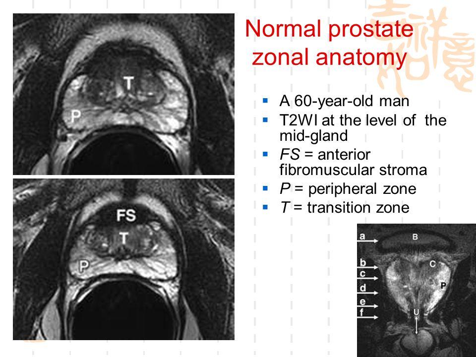Fein Prostata Mri Anatomie Bilder - Anatomie Von Menschlichen ...