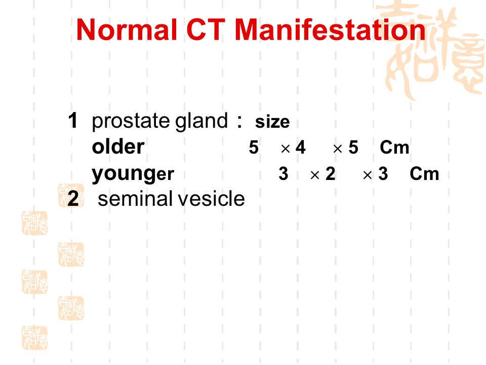 genitourinary imaging-----prostate - ppt download, Cephalic Vein