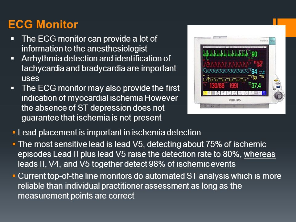basic anesthetic monitoring - ppt video online download, Powerpoint templates