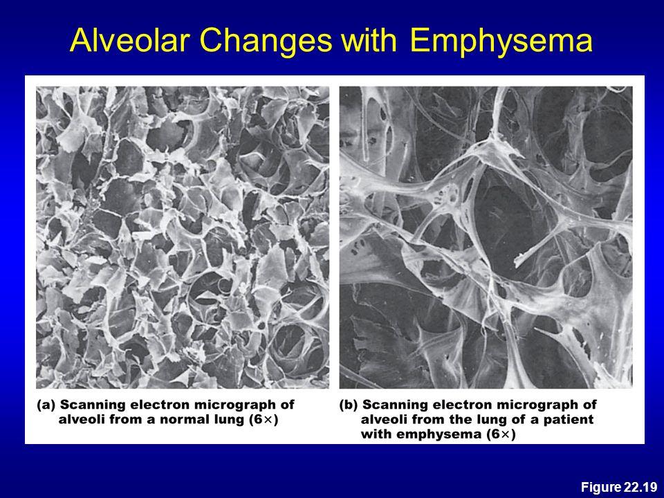 Alveolar Changes with Emphysema
