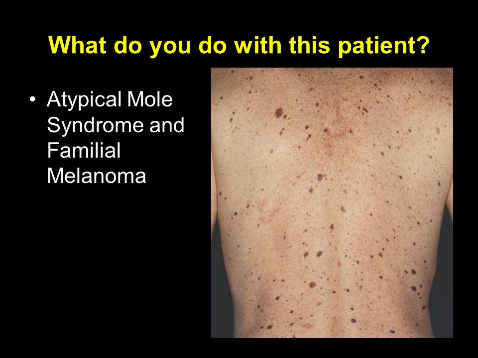 Skin cancers. - ppt vi...