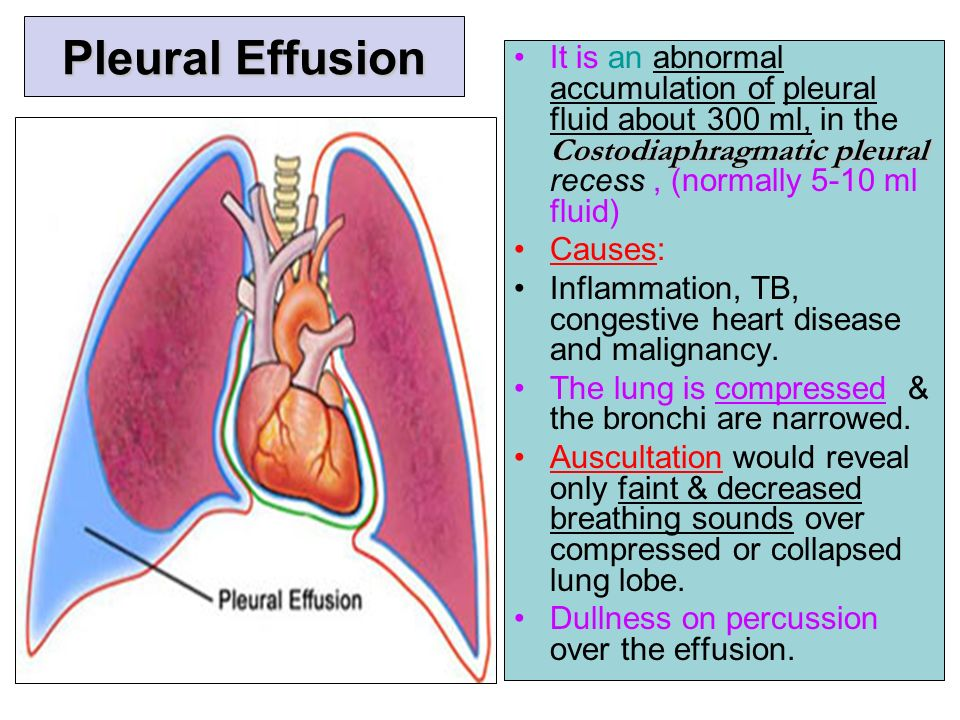 pleural effusion Pleural effusion means fluid is surrounding the lungs and heart it indicates an underlying problem.