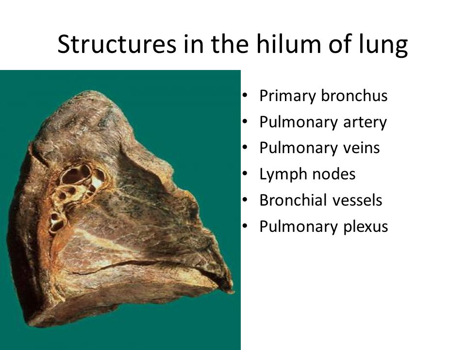 Pulmonary Ligament Lung