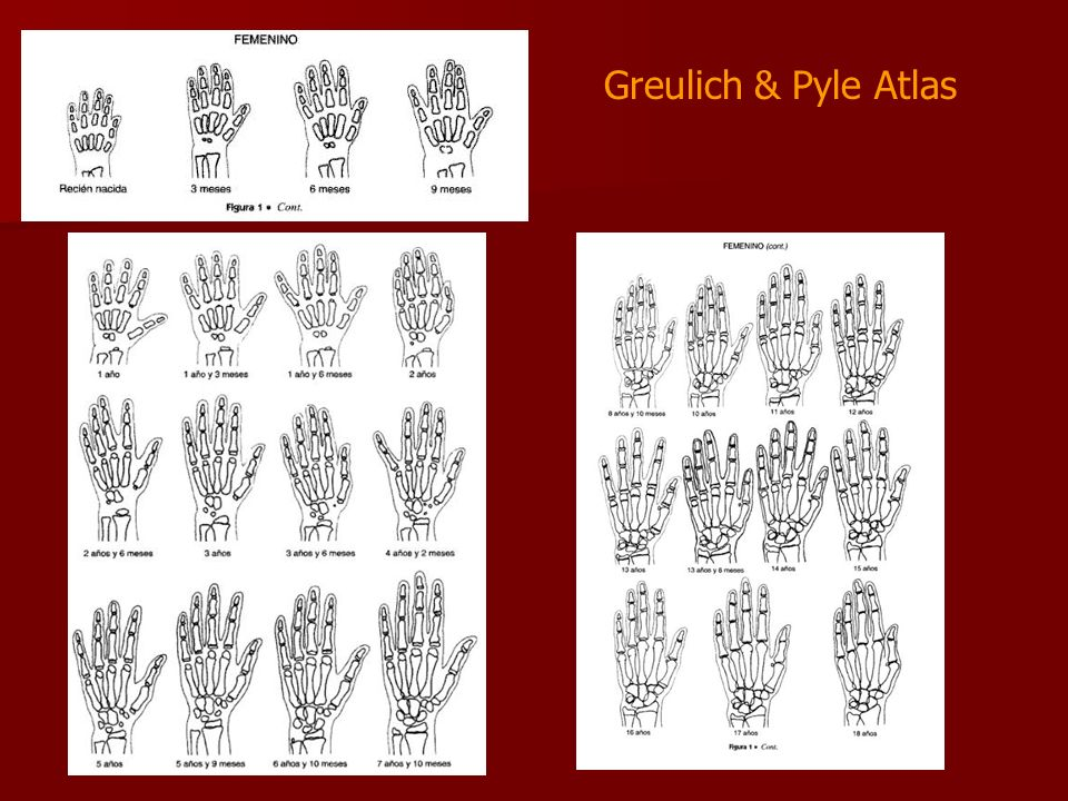 grulich pyles atlas assessment of bone age