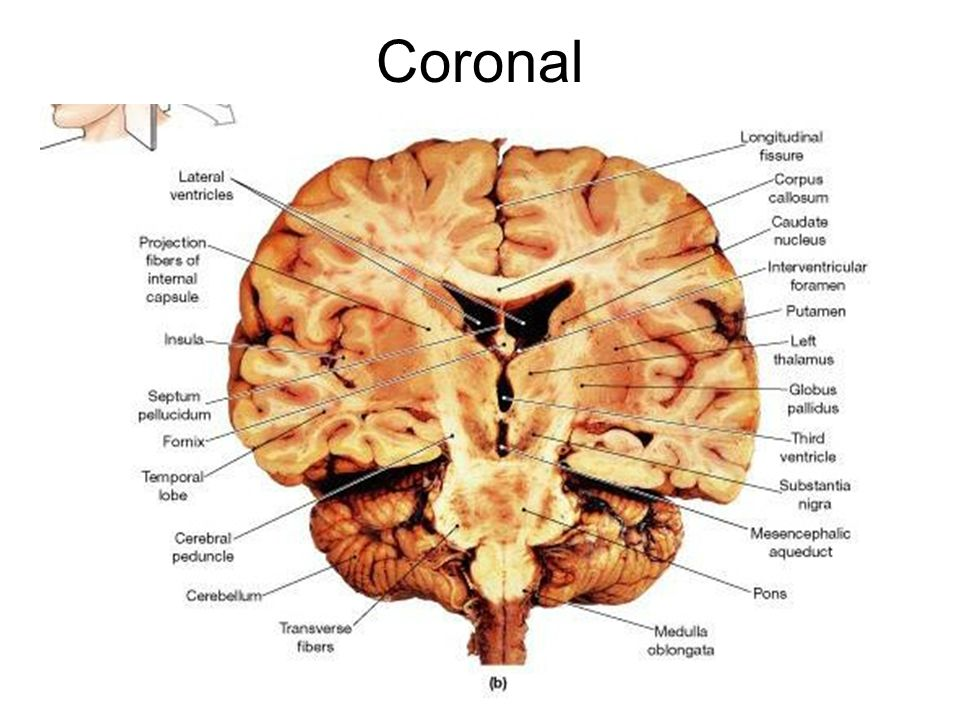 3936637 furthermore 13187 likewise 1180169 furthermore 7231770 moreover Tarsal Bones Labeled. on ventral surface of the human body