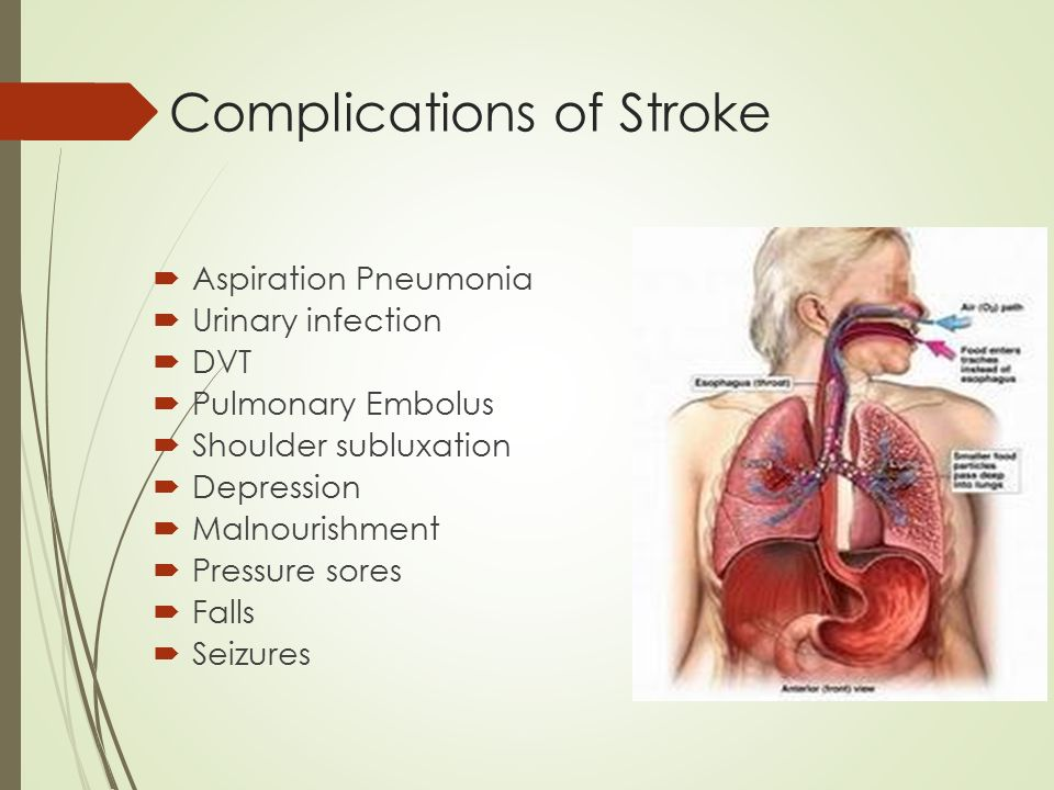 Management of Ischemic Stroke - ppt video online download