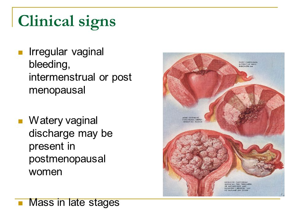 Vaginal bleeding after menopause - Maple suyrup diet