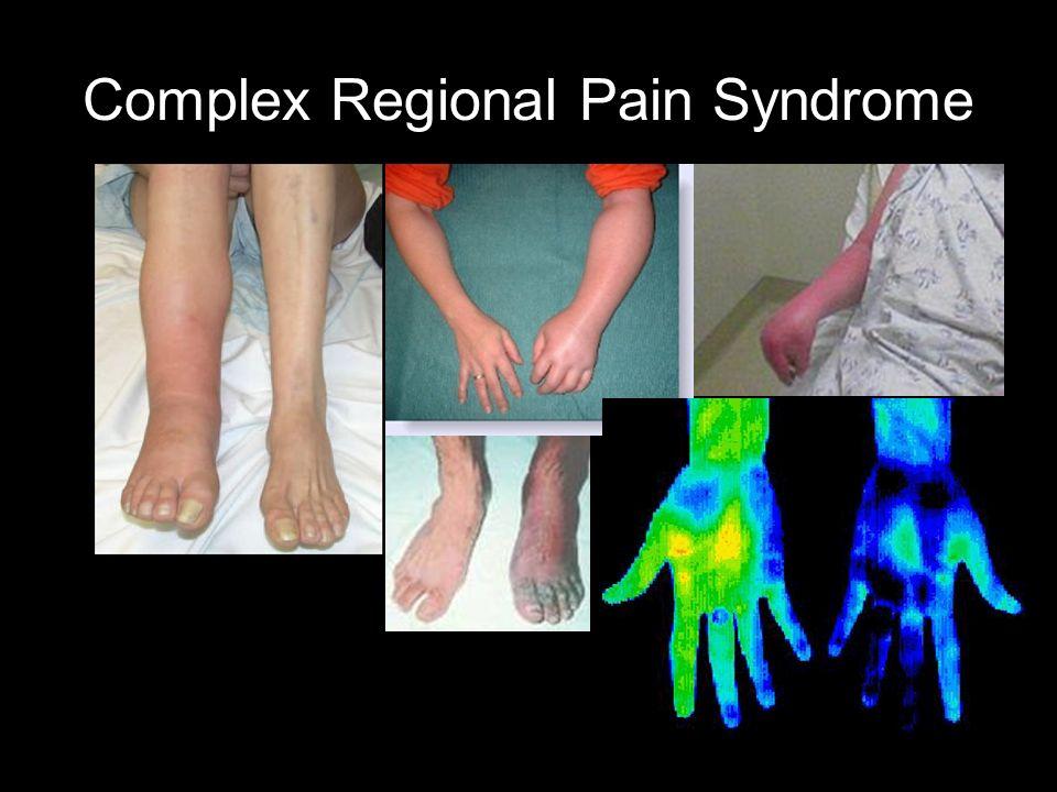 complex regional pain syndrome treatment pdf