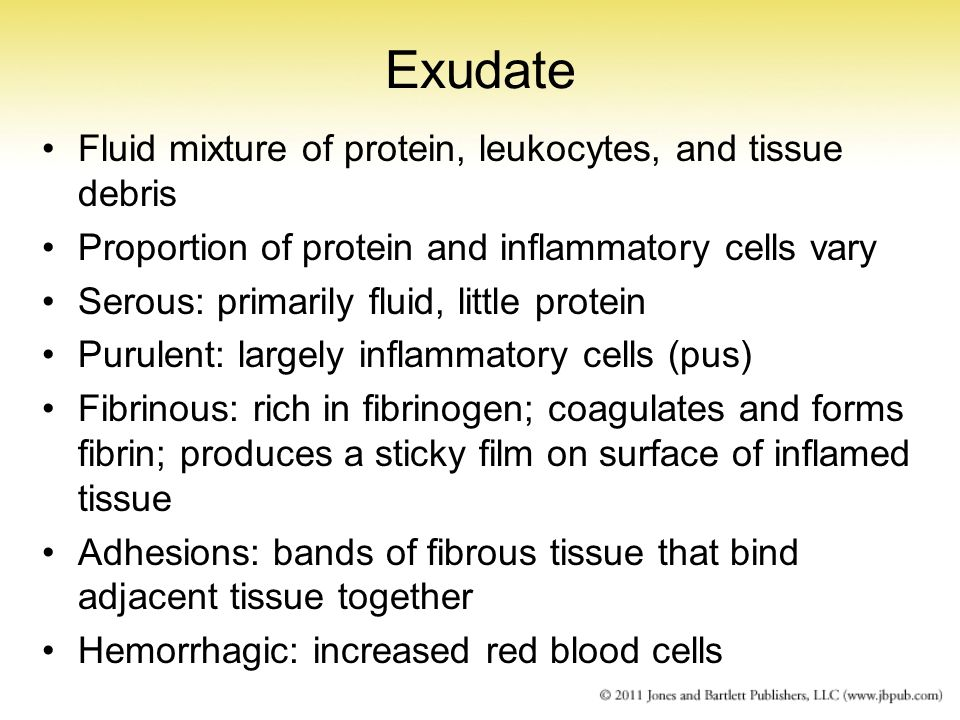 Serous Exudate Chapter 3 Inflammation...