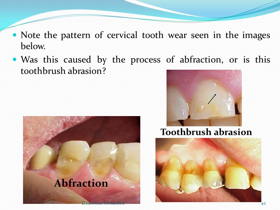 tooth wear aetiology prevention clinical implication
