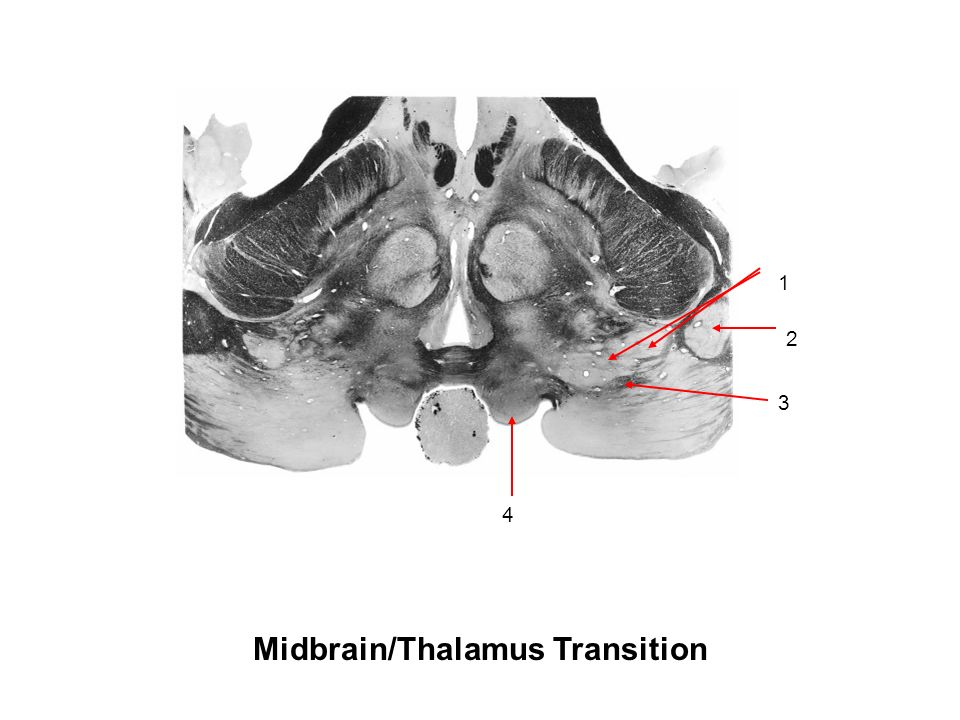 lateral transition
