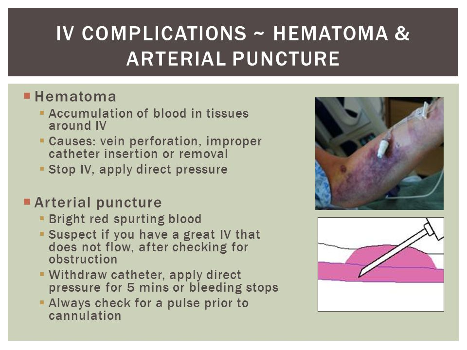 outcome of vascular complications after arterial punctures The higher risk of vascular complications after coronary catherisation in women might be explained by smaller vessel diameters in female patients, requiring more punctures to achieve arterial access [4 x [4] kelm, m, perings, s, jax, t et al incidence and clinical outcome of iatrogenic femoral arteriovenous fistulas.
