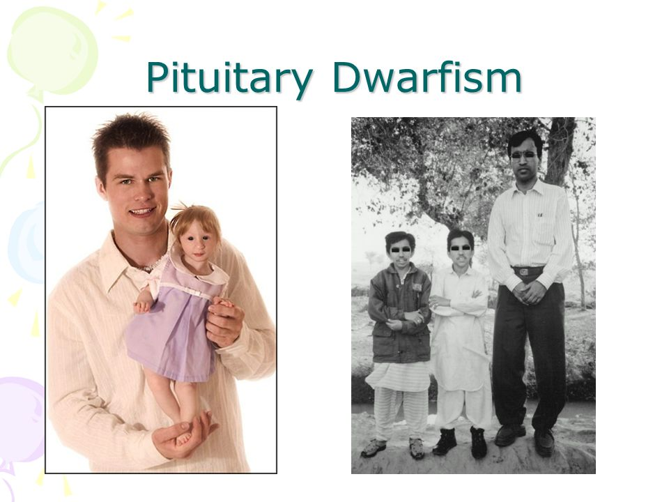 Pituitary Dwarfism Essay Research Paper The Pituitary