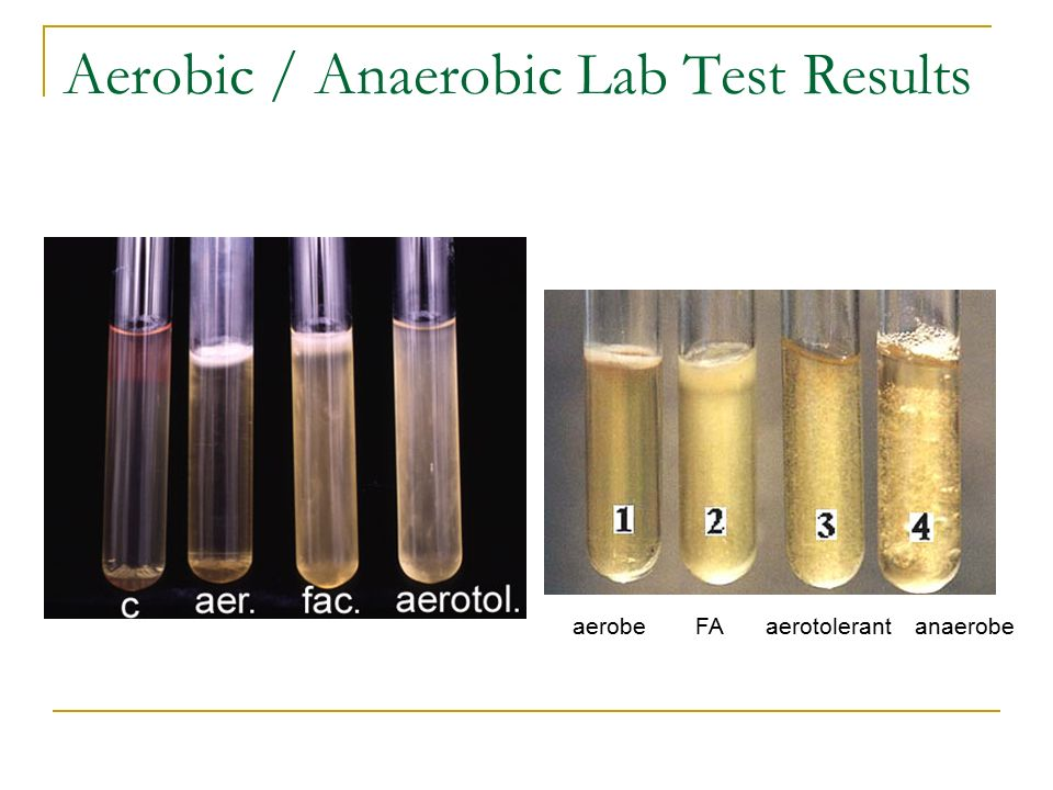 anaerobic lab View notes - aerobic lab from mcb 2000 at uconn the purpose of the anaerobic bacteria lab is to be able to distinguish whether the bacteria (clostridium sporogenes.