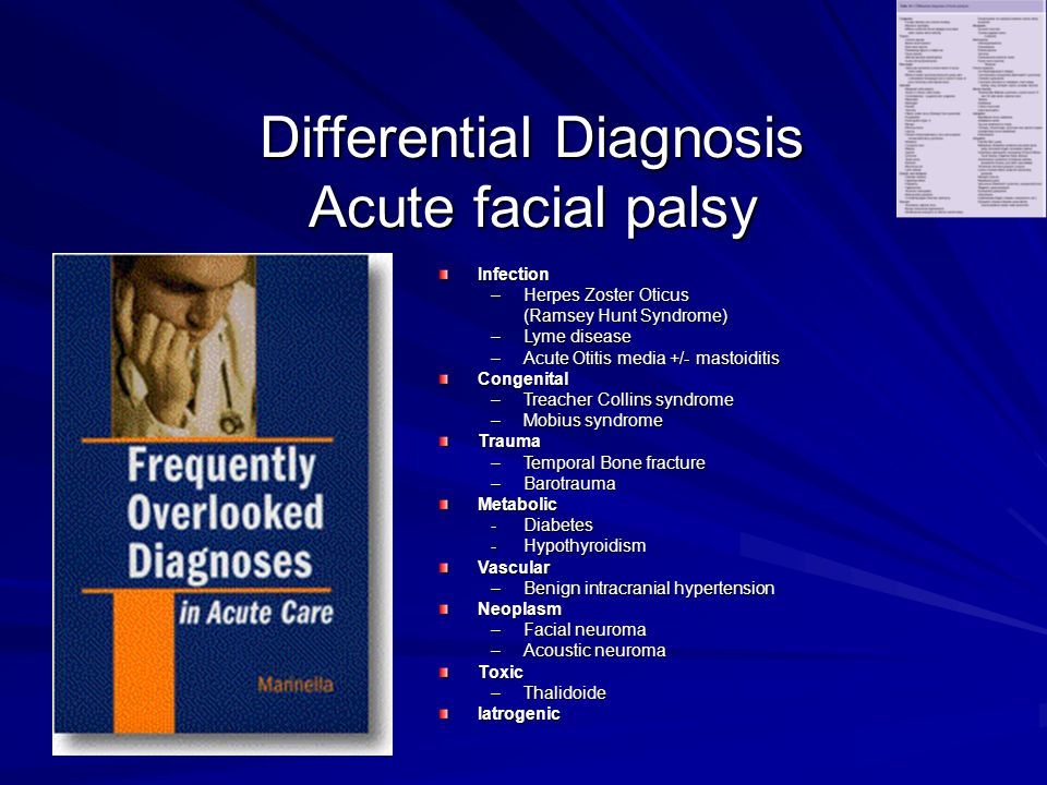 Differential Diagnosis Acute facial palsy